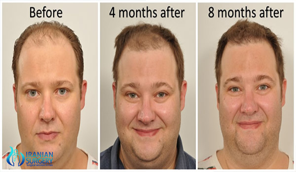 hair transplant iran