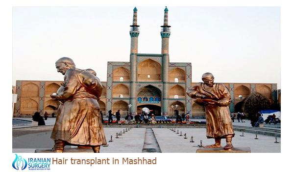 Hair transplant in iran mashhad
