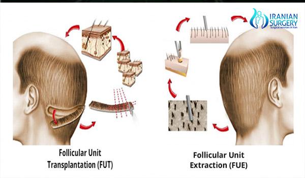hair transplant in iran step by step