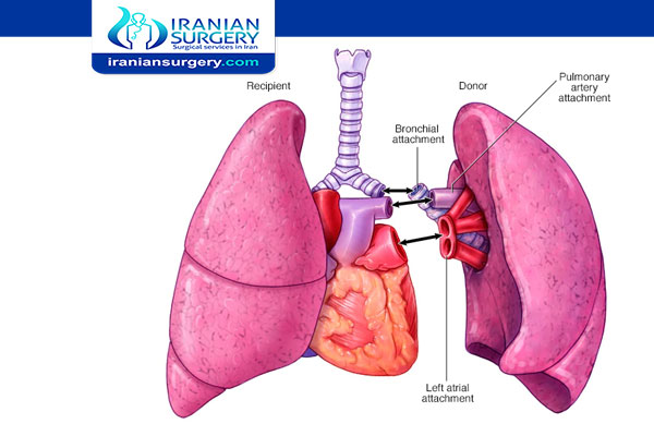 heart–lung transplant