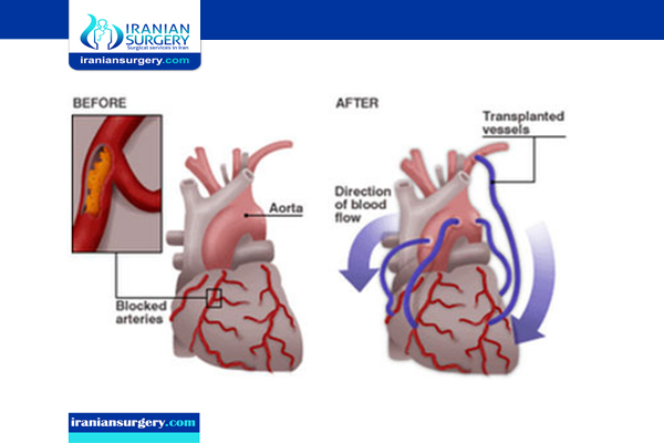Coronary bypass surgery in iran