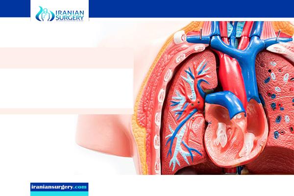 heart valve repair in iran