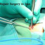 Hernia Repair Surgery in Iran
