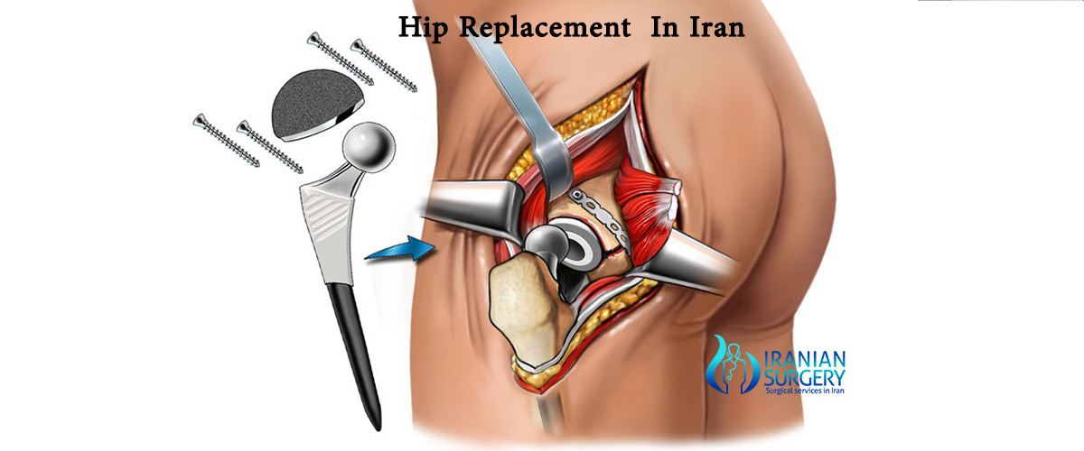 hip replacement cost in iran