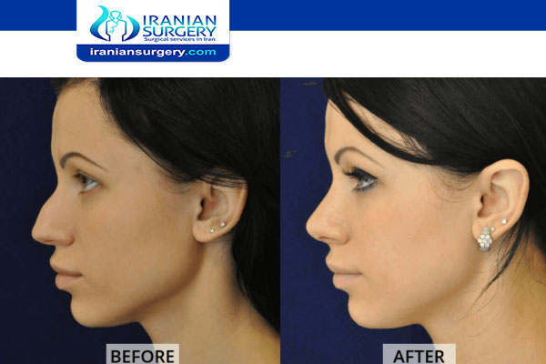 How To Fix A Deviated Septum Without Surgery Iranian Surgery