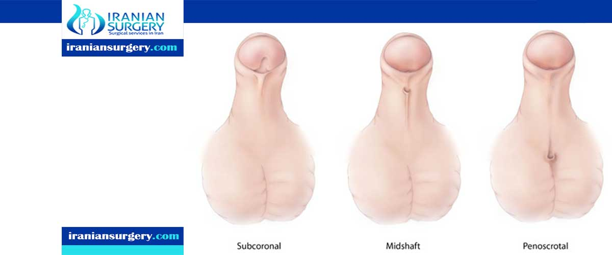 hypospadias types