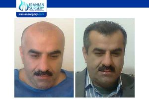 Long-term side effects of hair transplant surgery