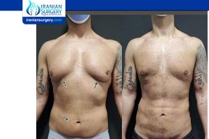 plastic surgery in Iran pictures