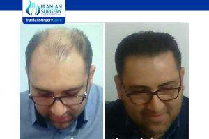 زراعة الشعر في ایران
