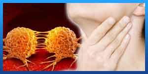 علاج السرطان في ایران