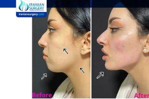 تجمیل الوجه في ایران قبل و بعد