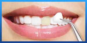 تجميل الاسنان في ايران