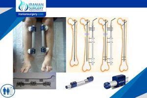Leg lengthening and shortening