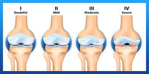 علاج التهاب غضروف الركبة