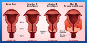 risk of cervical cancer