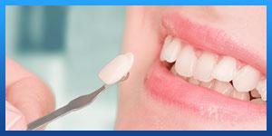 Are dental veneers permanent?