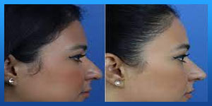 Buccal Fat Removal After Jaw (Orthognathic) Surgery