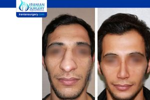 iranian nose job pictures