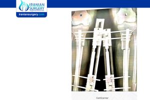 Leg lengthening surgery Scar
