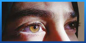 Recovery after LASIK Eye Surgery