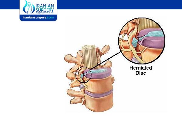 Microdiscectomy Success Rate