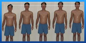 عملية تصغير الطول (جراحة تقصير العظام)
