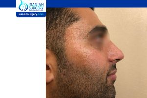 IRANIAN NOSE HOB PICTURES