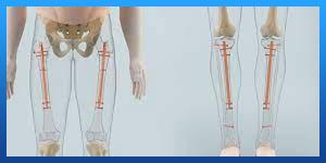 Internal Limb Lengthening Surgery