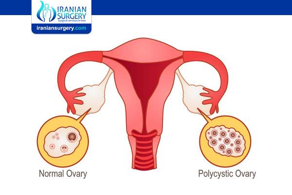How Fast Do Ovarian Cysts Grow?