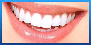 عمليات تجميل اسنان في ايران