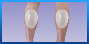 calf implants before and after pictures
