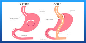 Gastric band surgery in Iran