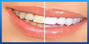 After Dental Lumineers