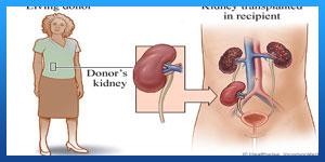 Kidney Transplantin iran
