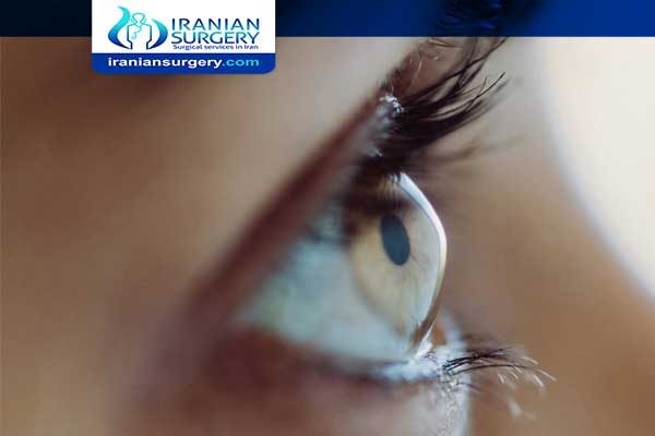 keratoconus Treatment in Iran