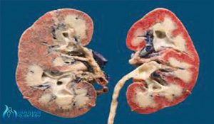 ureteroscopy in iran