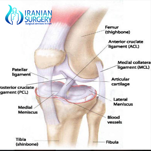 knee arthroscopy recovery in iran cost
