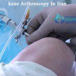 knee arthroscopy in Iran