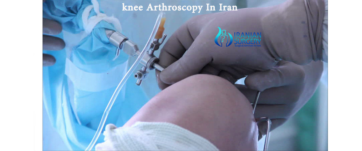 knee arthroscopy Iran cost