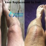 Knee Replacement in iran