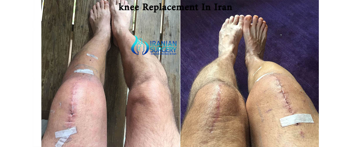 knee replacement cost iran