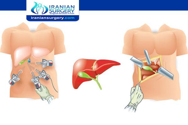 laparotomy and laparoscopy