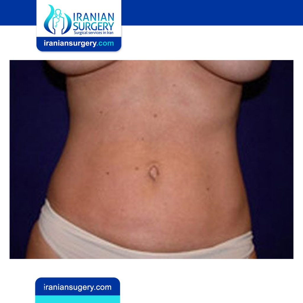 Liposuction:cost,surgery,risk,side effect,recovery,candidate
