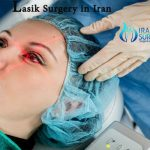 lasik surgery in iran