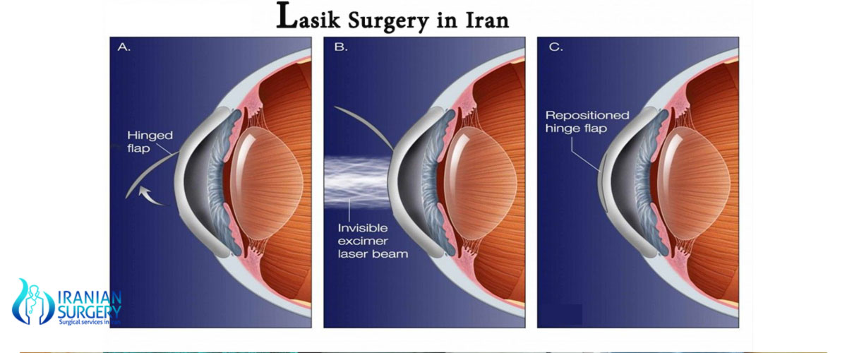 lasik surgery in iran