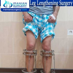 leg-lengthening dr Jafari