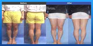 leg lengthening surgery before and after photos