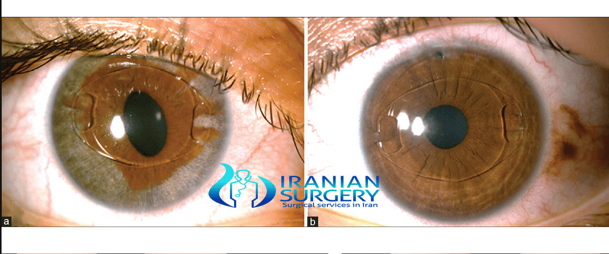 lens implant surgery