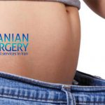 Liposuction cost in iran