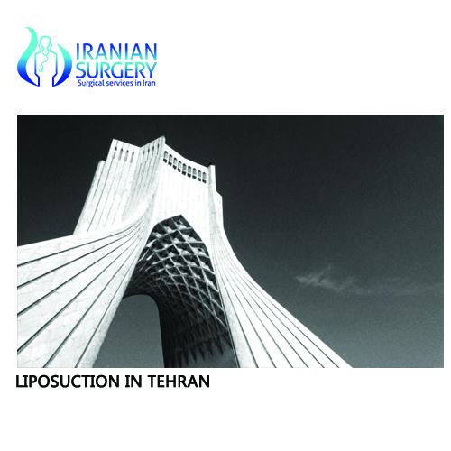 liposuction cost in tehran